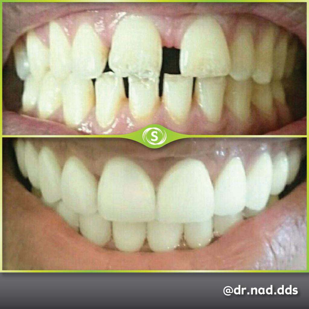 Cosmetic Dentistry - Porcelain Veneers - Dr. Nader Modarres