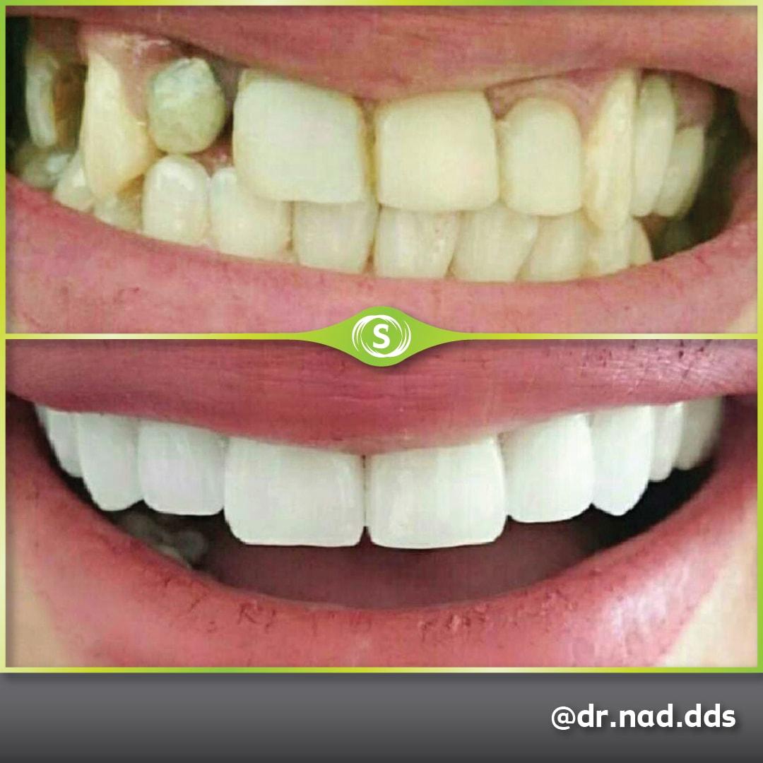 Cosmetic Dentistry - Zirconia Bridge - Dr. Nader Modarres