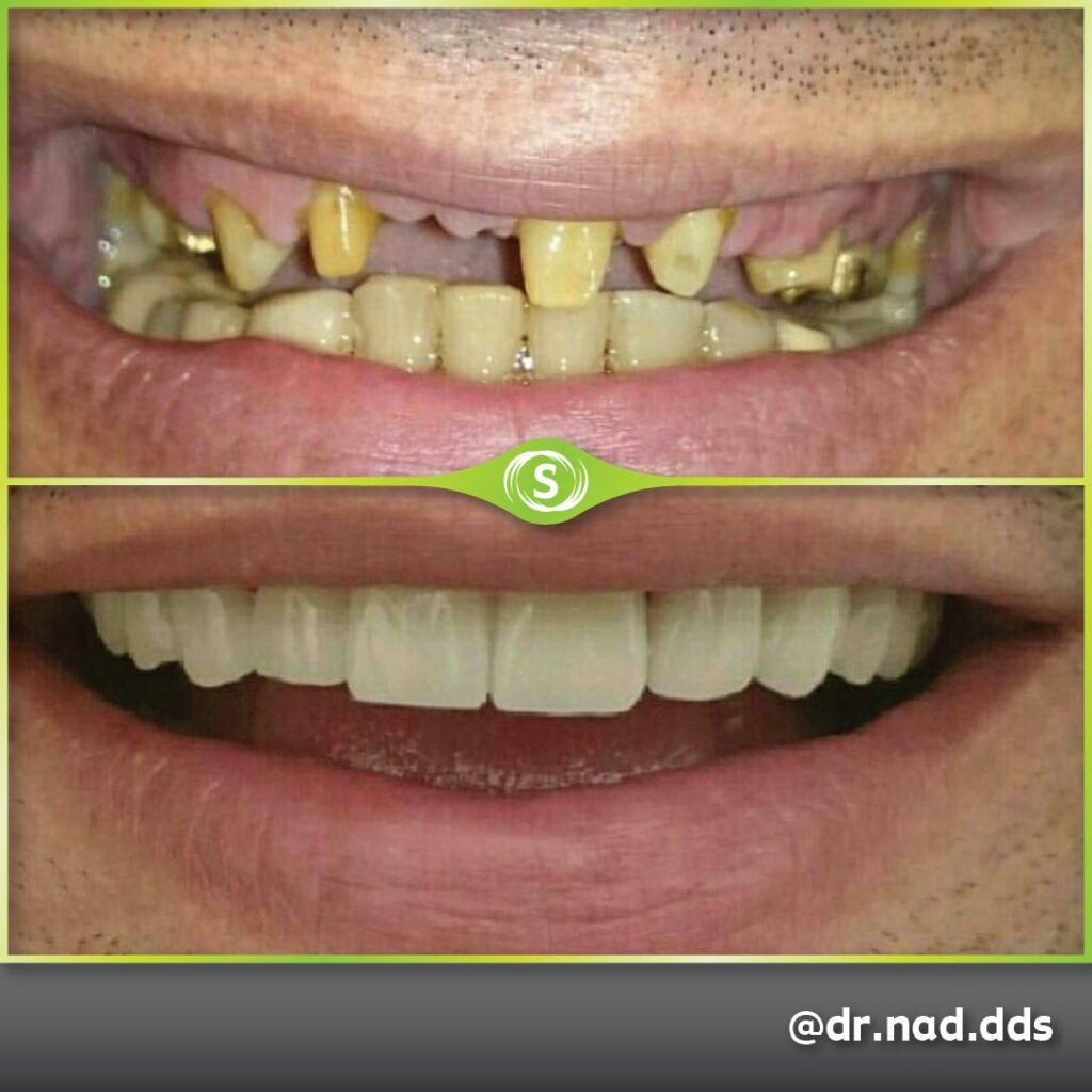 Dental Bridge E-max Zirconia - Dr. Nader Modarres