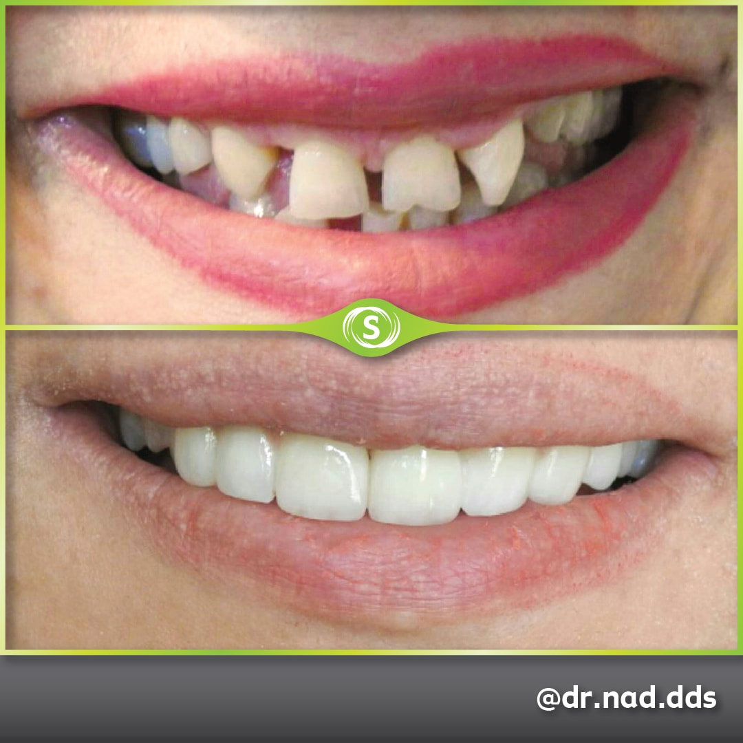 Dental Bridge - Dr. Nader Modarres