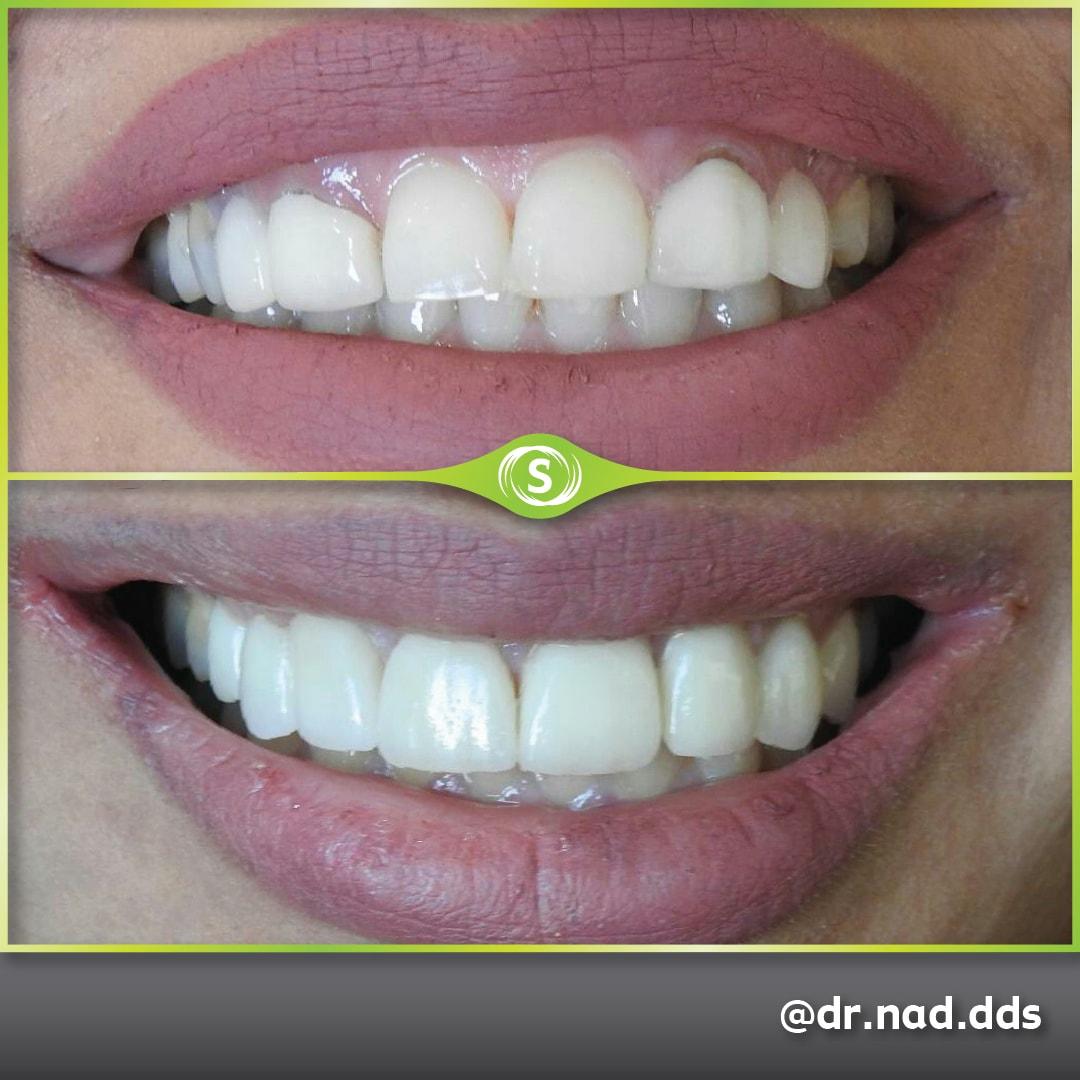 Dental Crown Zirconia E-max - Dr. Nader Modarres