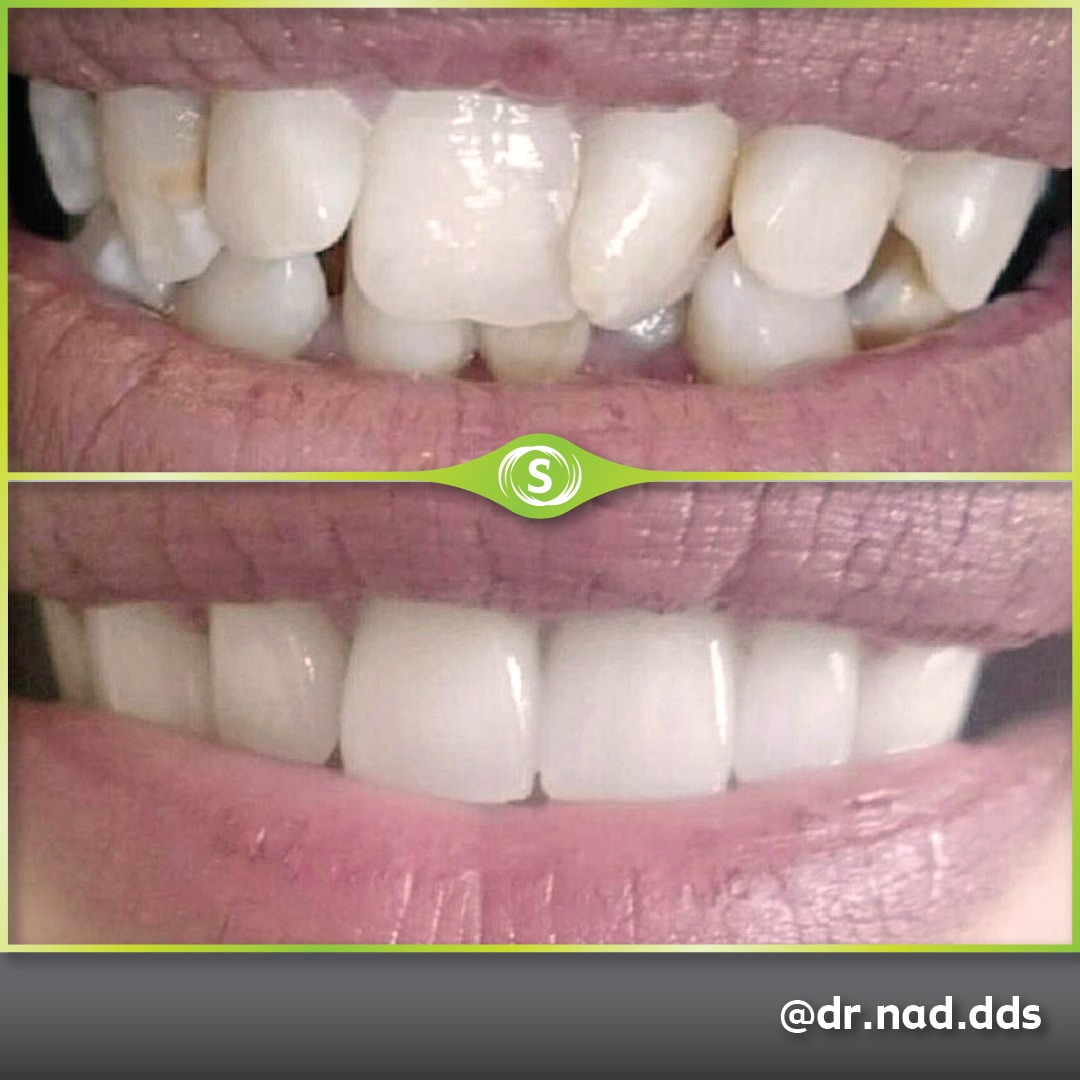 Dental Crowns Zirconia E-max - Dr. Nader Modarres