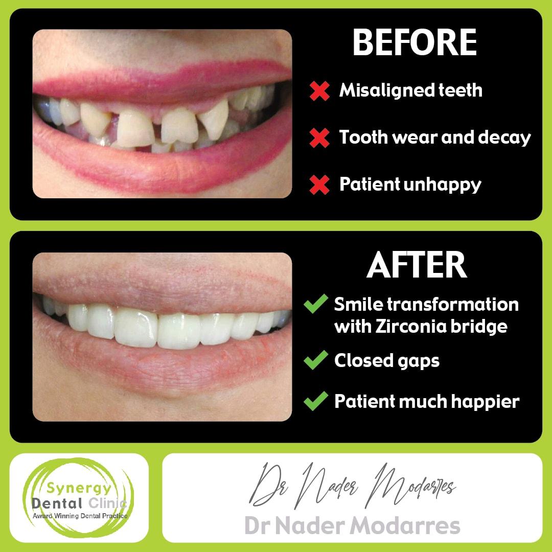 Dr Nader Modarres Cosmetic Dentistry Zirconia Bridges