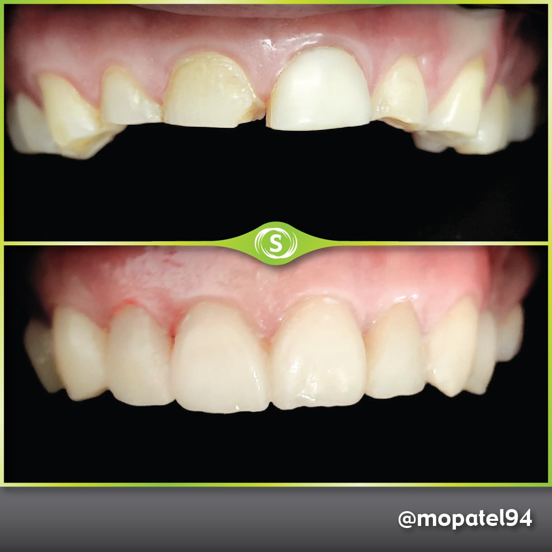 Composite Bonding - Dr. Mo Patel