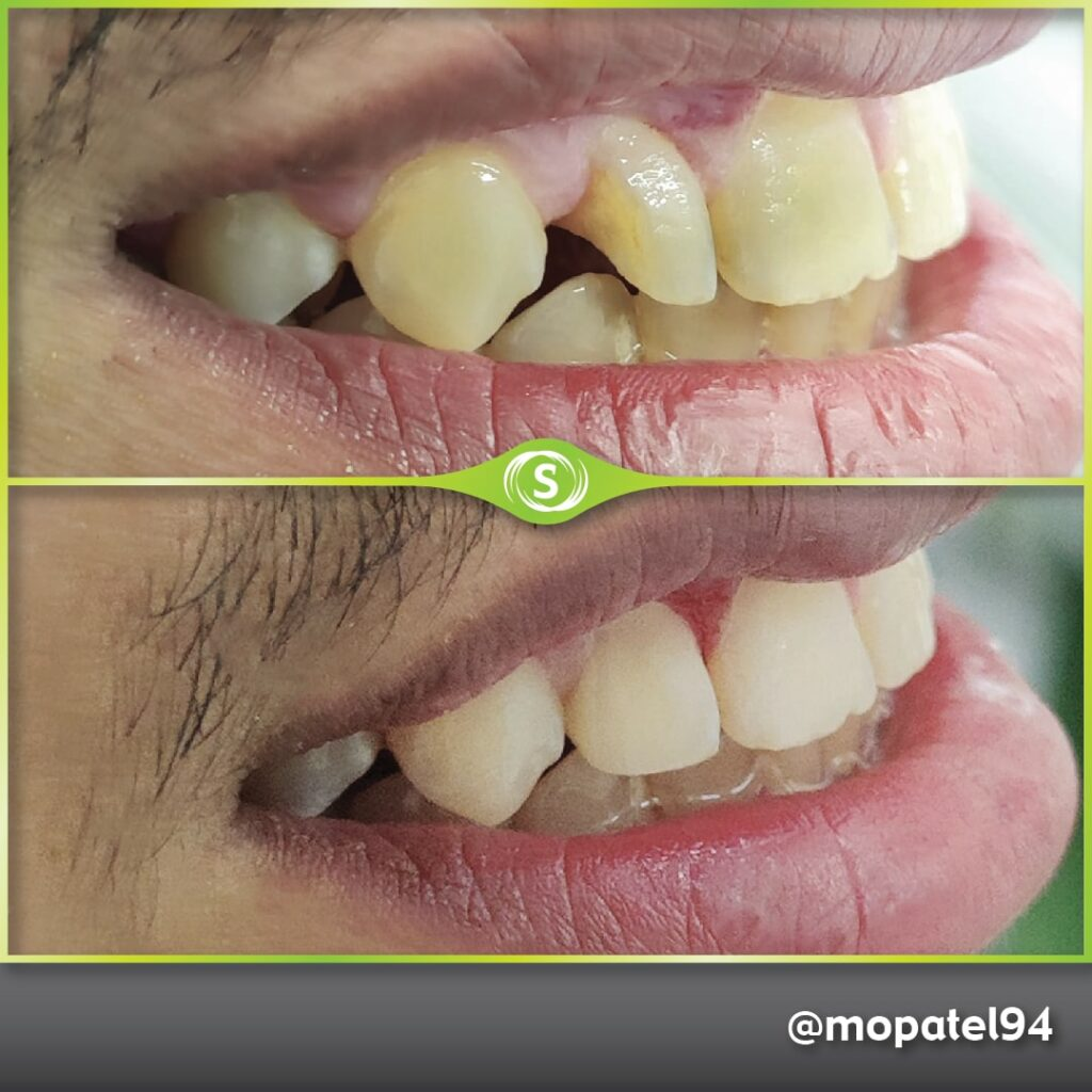 Composite Bonding - Dr. Mo Patel