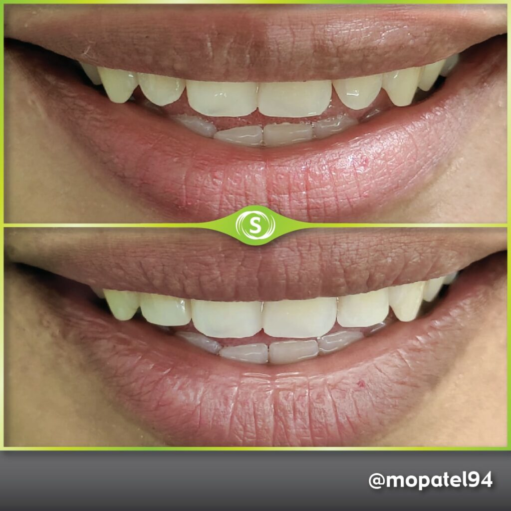 Composite Bonding Dr. Mo Patel