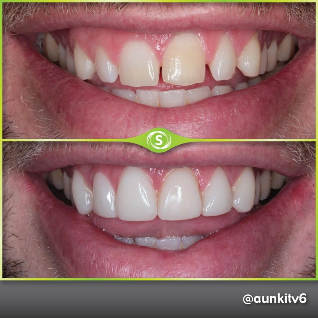Composite Bonding - Dr. Aunkit Vaja