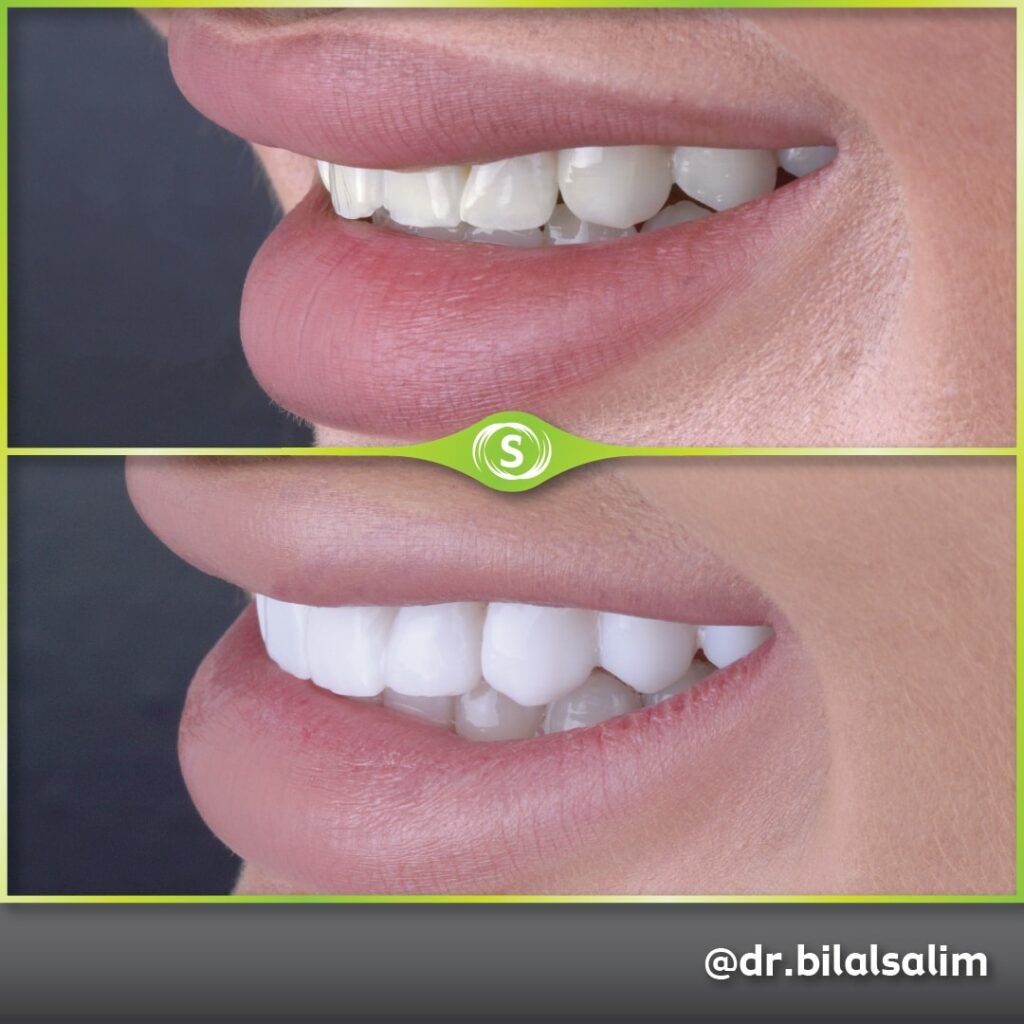 Composite Bonding - Dr. Bilal Salim