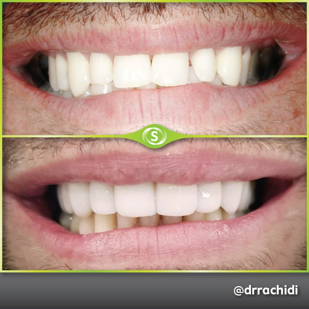 Dental Crowns E-max Zirconia - Dr. Karim Rachidi