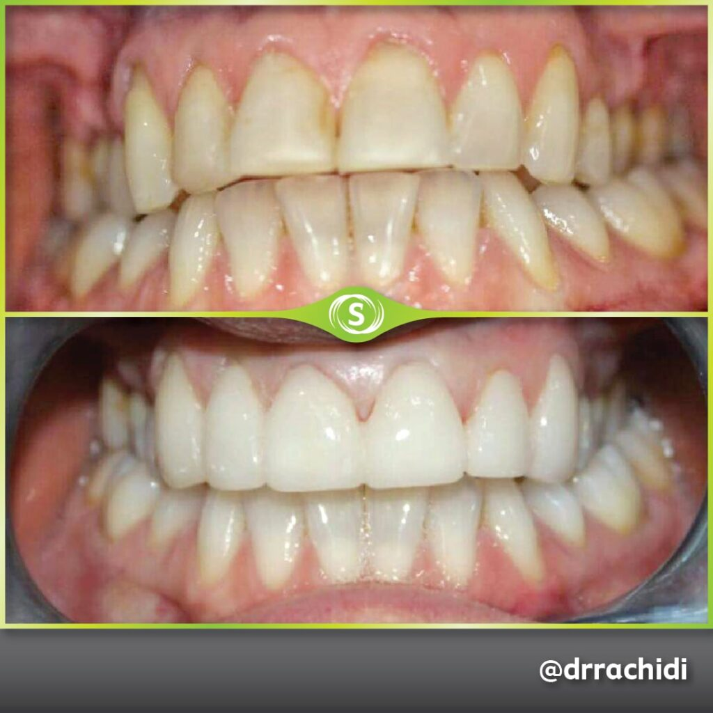 Dental Crowns Zirconia - Dr. Karim Rachidi