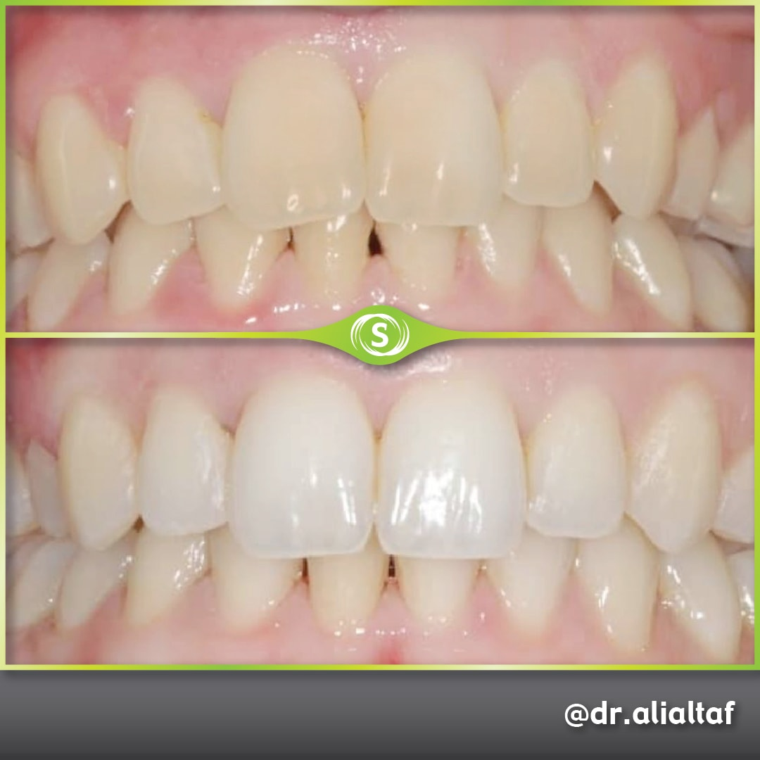 Invisalign and Teeth Whitening - Dr. Ali Altaf