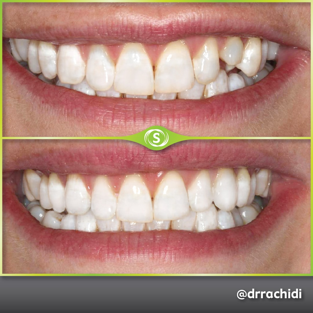 Dental Crowns Zirconia - Dr. Karim Rachidi