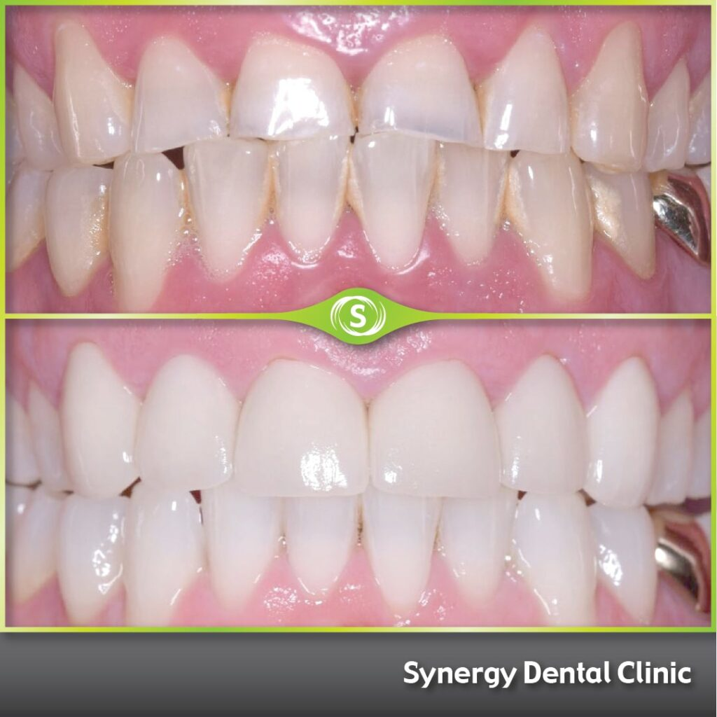 Cosmetic Dentistry 444