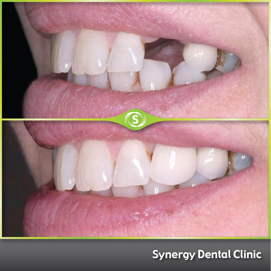 B&A Single Dental Implant SDC