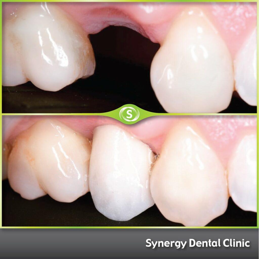 B&A Single Dental Implant SDC 258