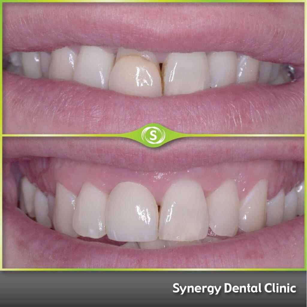 Single Dental Veneer