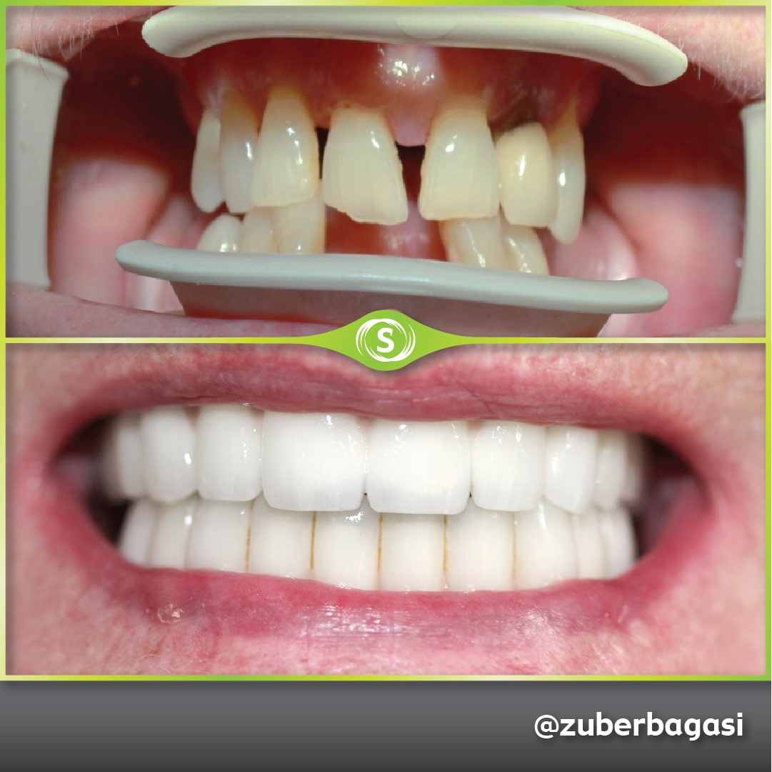 B&A Dentures ZB-min