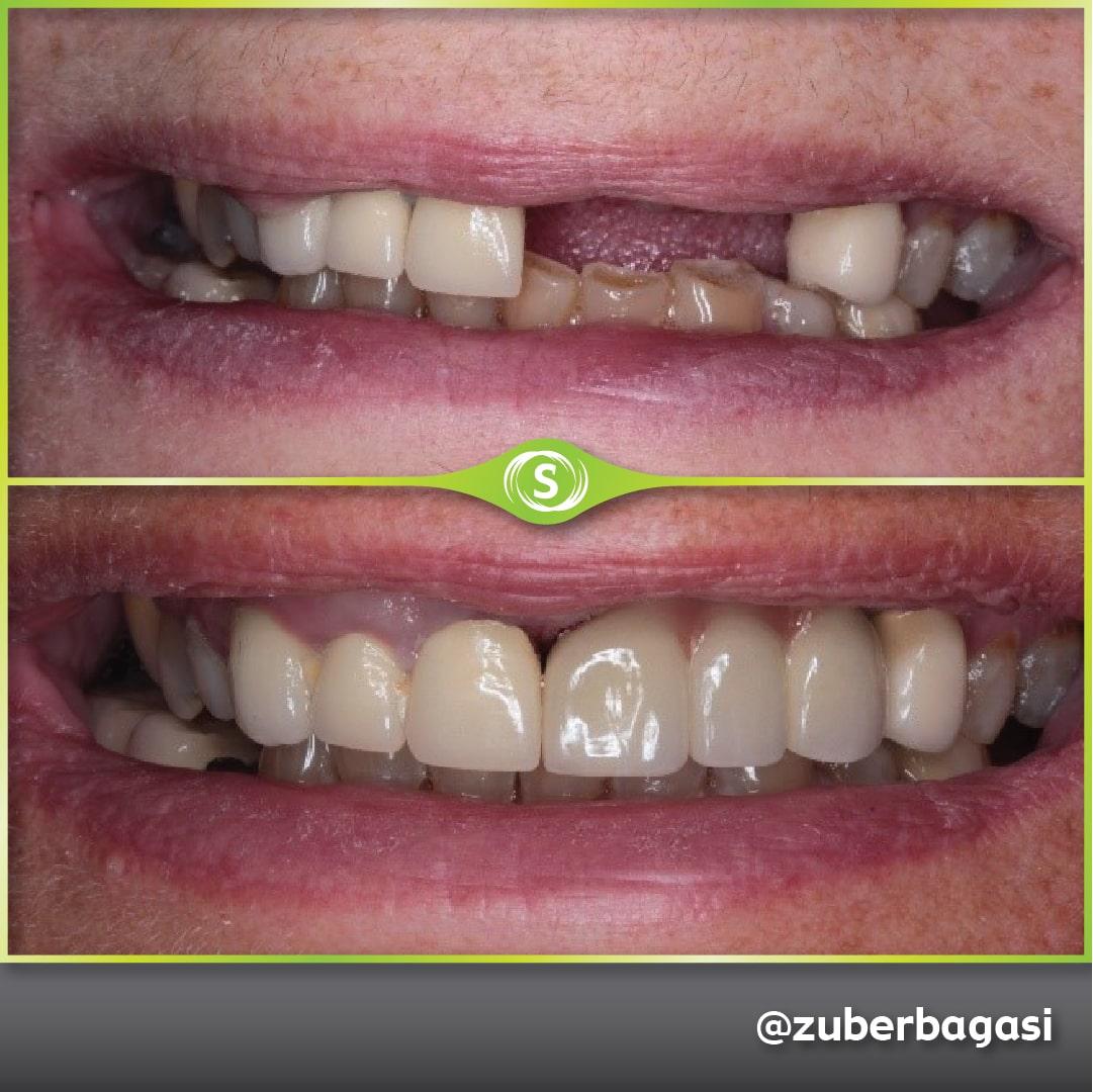 B&A Dental Implants - 3 Unit Bridge