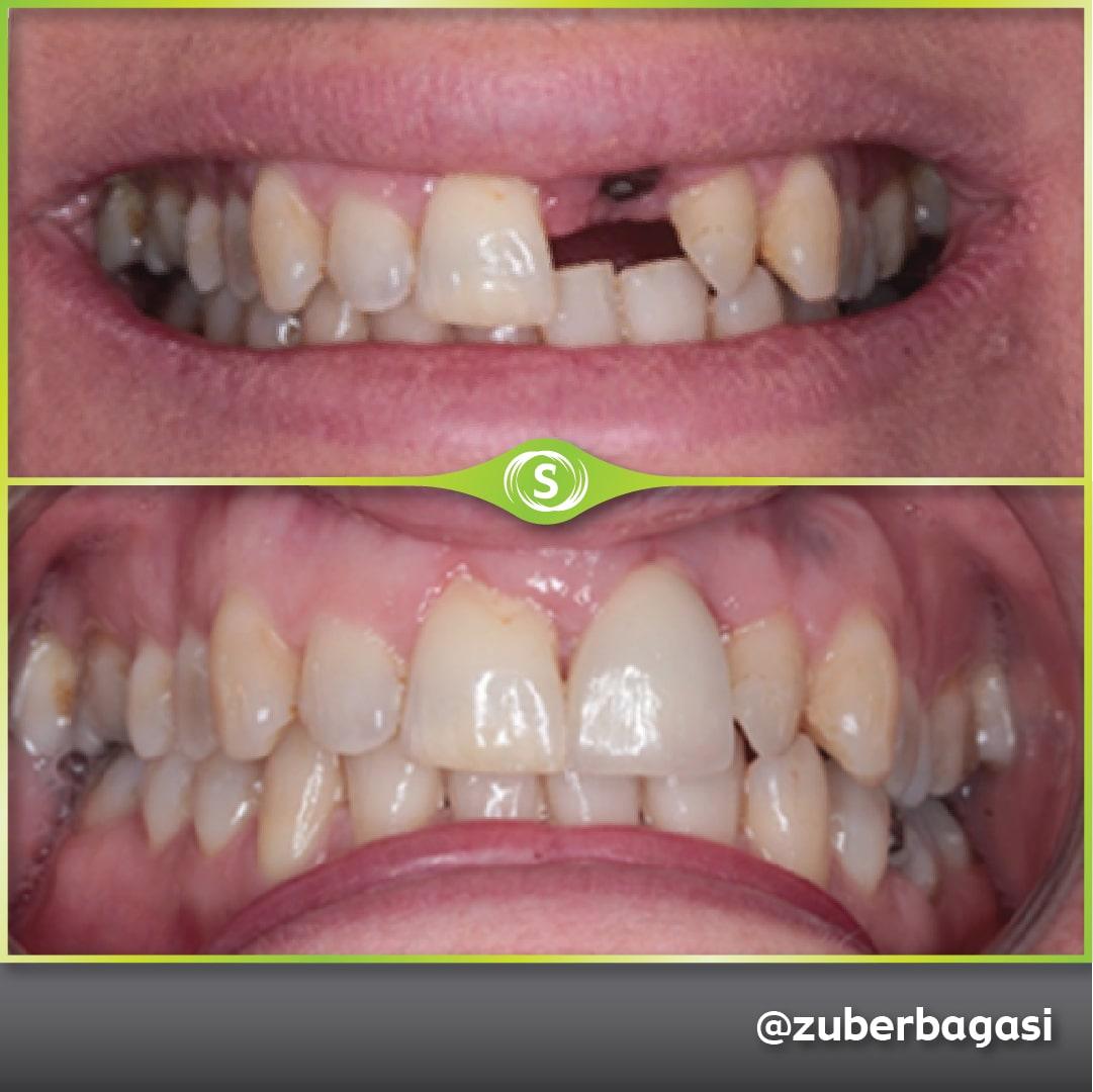 Dental Implant Case - Dr. Zuber Bagasi