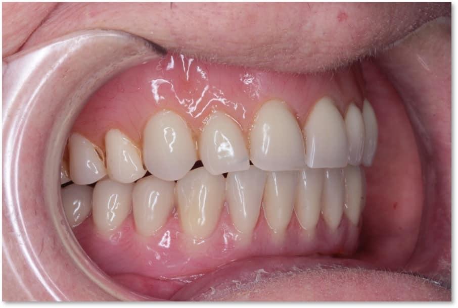 Full Same Day Implants - Case Study - Dr. Zuber Bagasi